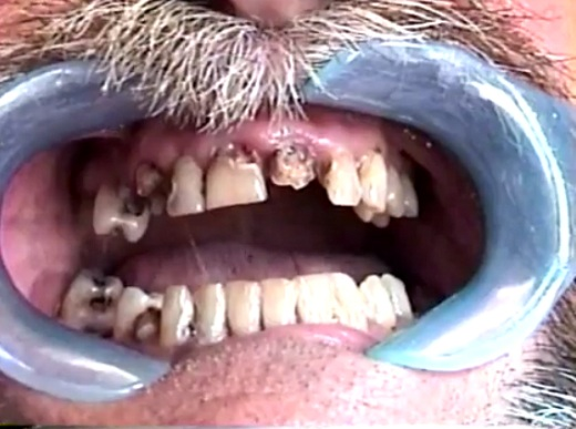 Meth Mouth Does Saliva Quality Play an Important Role in Meth Mouth?